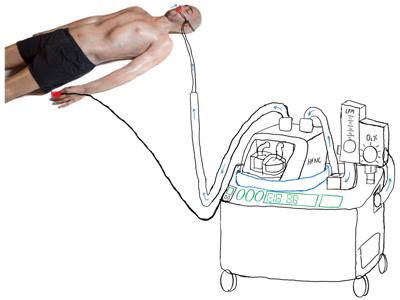 Image for project called Standalone Self Regulated Oxygen Delivery System HFNC - Team Simple - Bootcamp 2020
